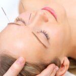 Acupuncture therapy – alternative medicine